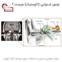تومور شنوایی (اکوستیک) چیست